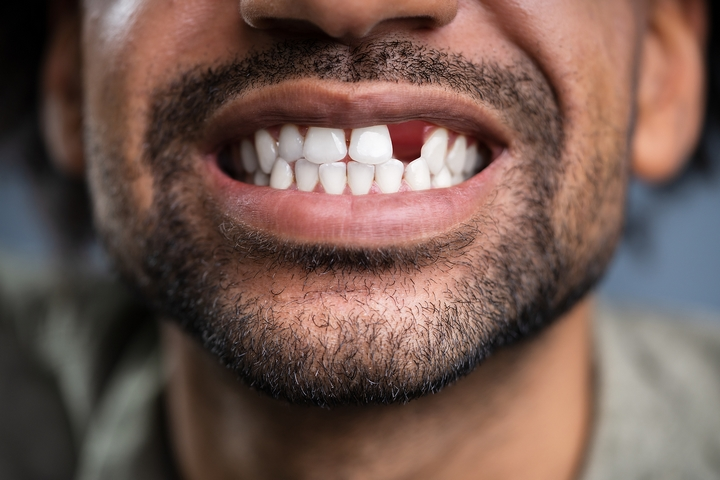 7 Best Options to Replace Missing Teeth or Damaged Teeth